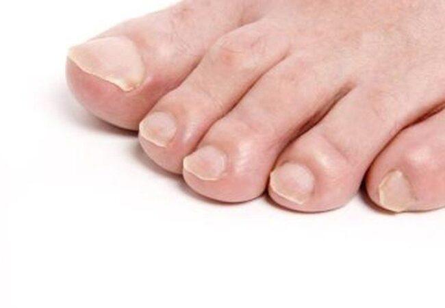 Stop glivični nohti, obstaja naravna rešitev